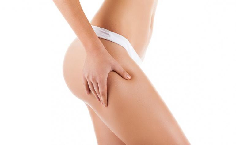 I rimedi contro la cellulite